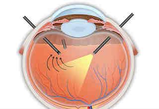 Витрэктомия глаза - операция в Москве