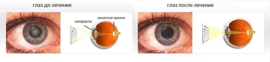 Отзывы и сколько стоит замена хрусталика при катаракте