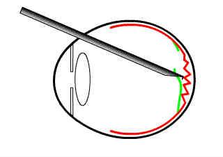Лечение эпиретинальной мембраны глаза в Москве