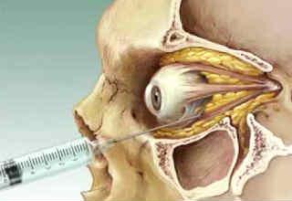Анестезия при операциях на глазах