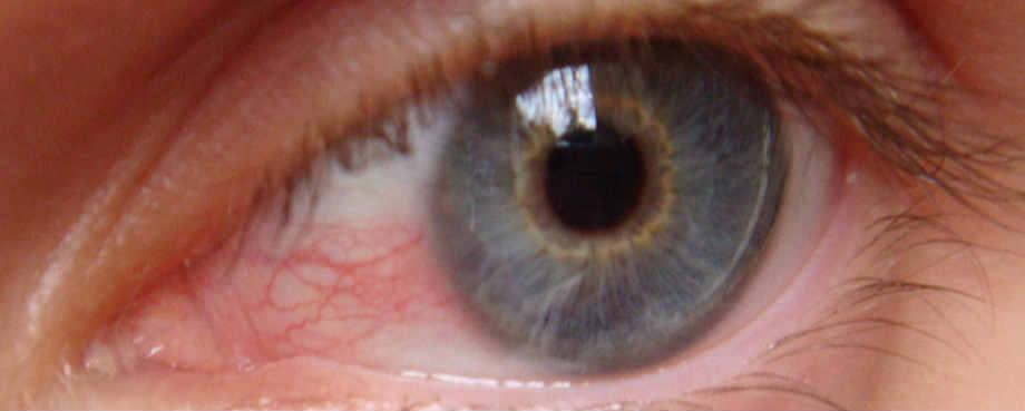 Цены на лечение заболеваний слезного аппарата глаза в Москве